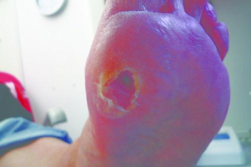 Wunde vor der Behandlung mit Woulgan